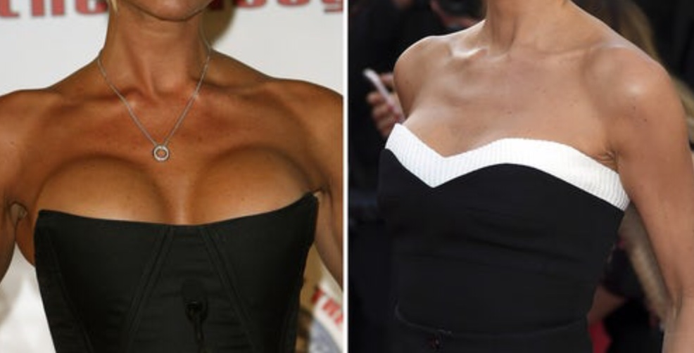 antes y después en famosas